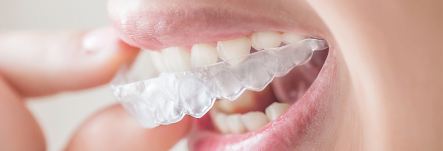 orthodontie Invisalign
